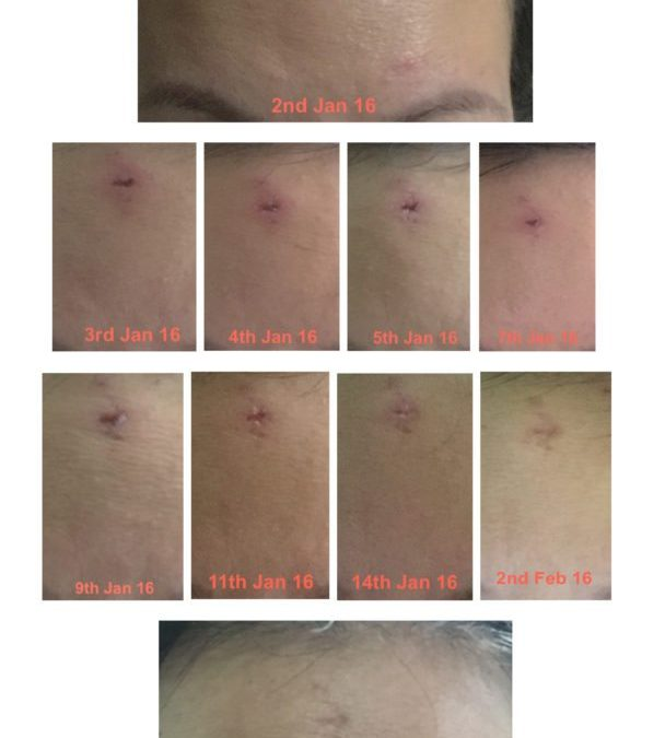 How I developed a huge cystic acne and cleared it